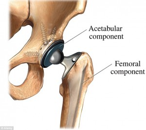 Metal on Metal Hip Claim