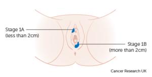 Vulval Cancer